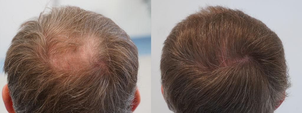 przeszczep włosów efekty przed i po