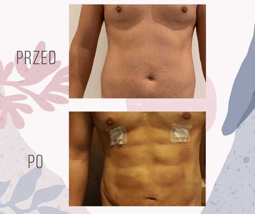efekt po liposukcji ultradzwiekowej brzucha