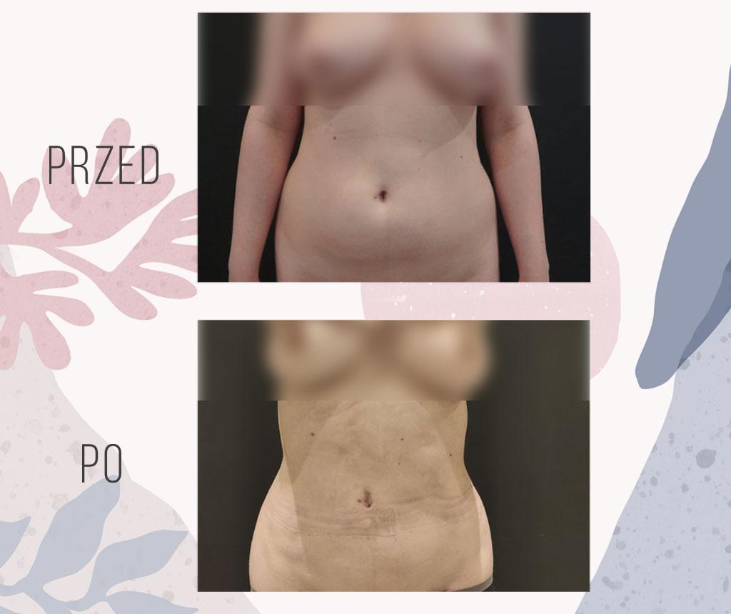 modelowanie brzucha liposukcją