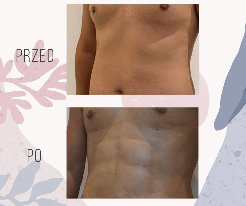liposukcja szesciopak brzucha mezczyzna