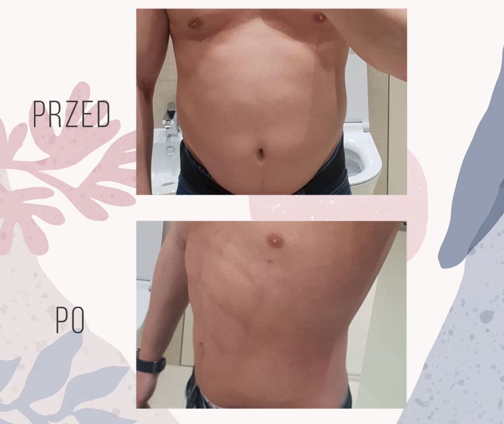 liposukcja vaser lipo brzucha warszawa
