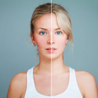 cosmelan i dermamelan terapia depigmentacyjna warszawa