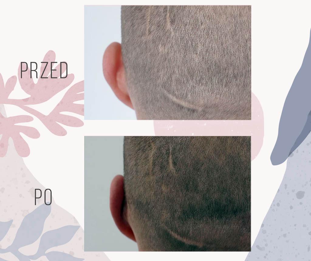 korekta uszu mezczyna