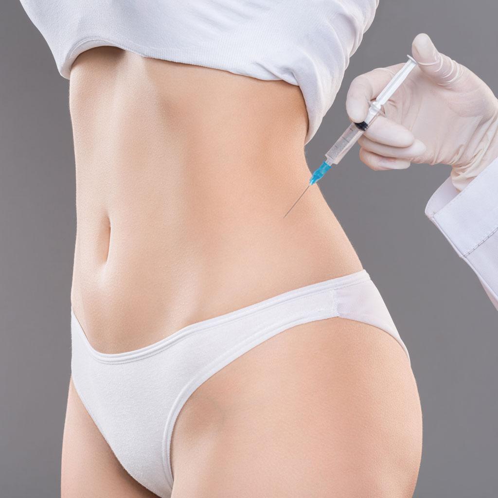 Lipofilling – modelowanie sylwetki własnym tłuszczem