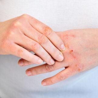 atopowe zapalenie skory diagnostyka i leczenie