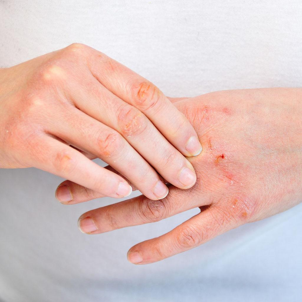 Atopowe zapalenie skóry – Diagnostyka ileczenie