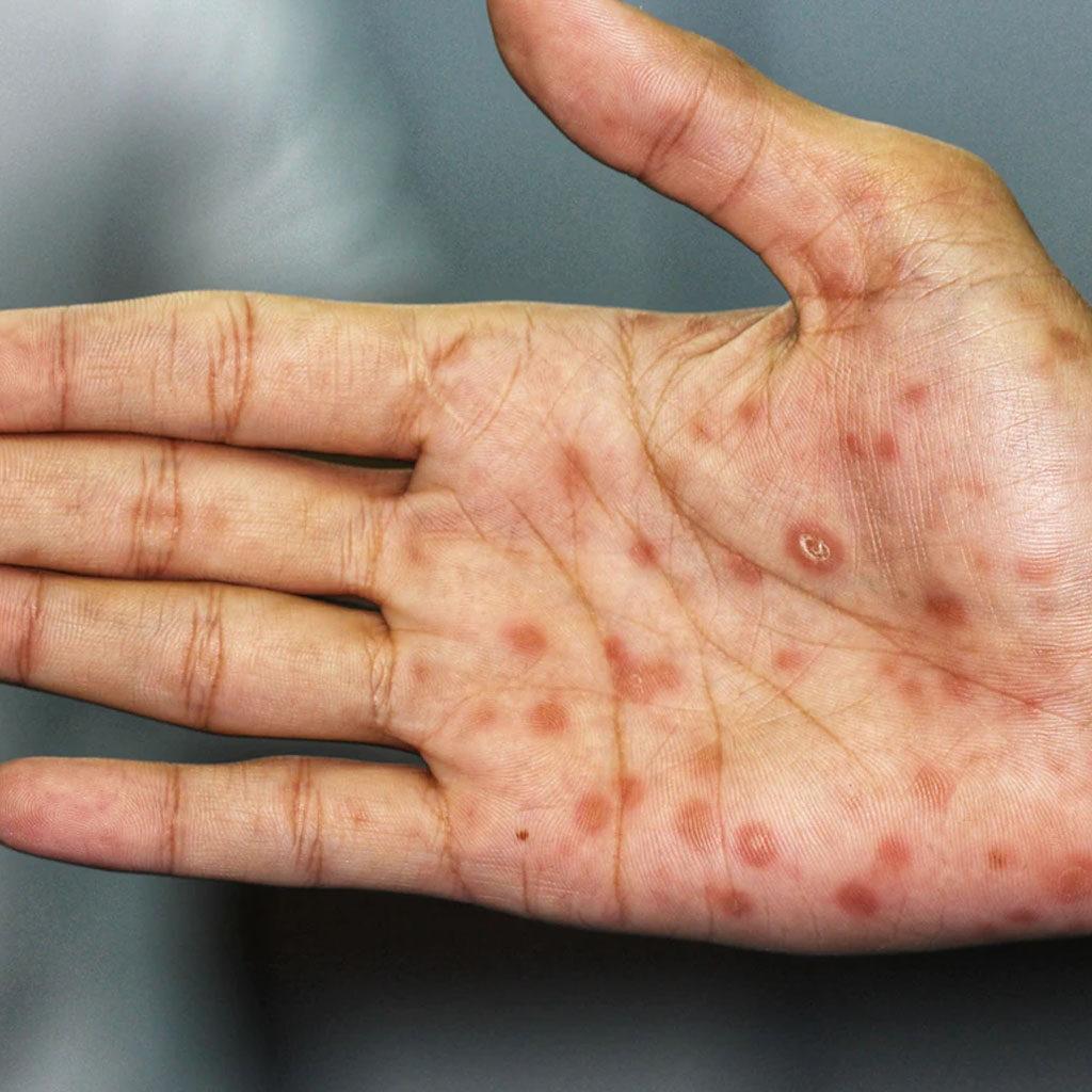 kila syfilis diagnostyka i leczenie