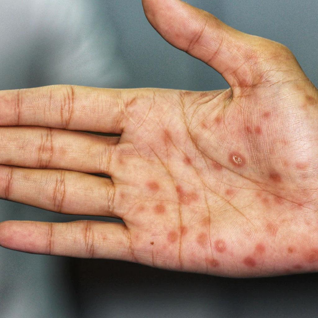 Kiła (syfilis) – Diagnostyka ileczenie