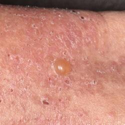 pemfigoid pecherzowy diagnostyka i leczenie