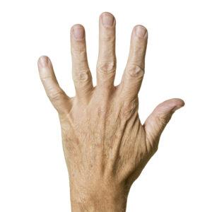 starzejące sie dłonie