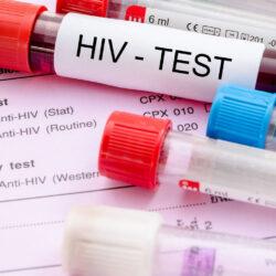 wirus hiv diagnostyka i leczenie