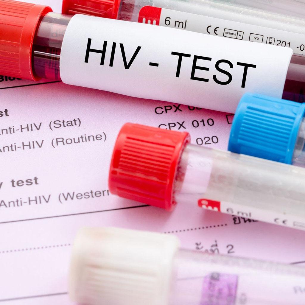 Wirus HIV – Diagnostyka ileczenie