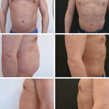 liposukcja 2