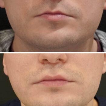 modelowanie ust umezczyzn kwasem hialuronowym