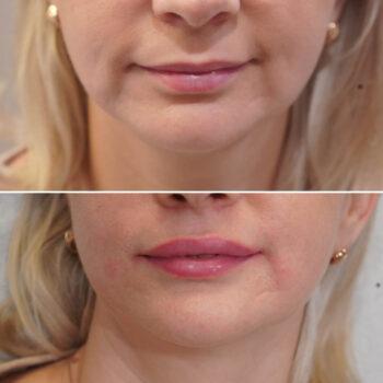 powiekszanie ust kwasem hialuronowym