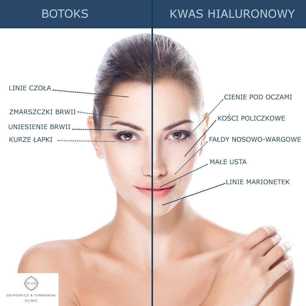 toksyna botulinowa kwas hialuronowy roznice