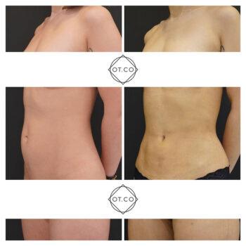 liposukcja brzucha i boczkow lipo vaser renuvion