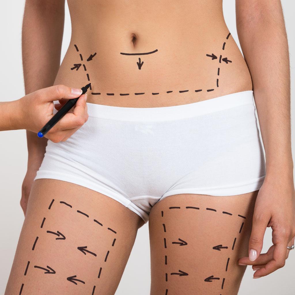 liposukcja ultradzwiekowa