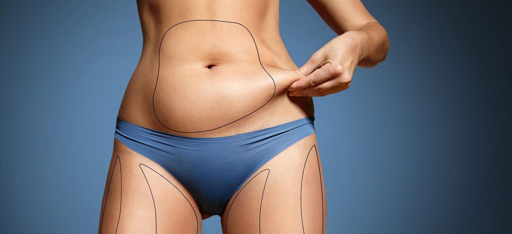 Liposukcja – odsysanie tłuszczu zbrzucha inietylko