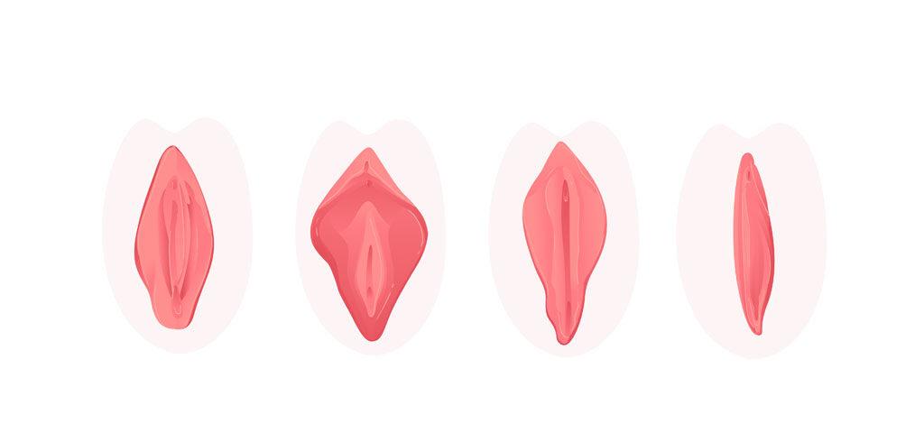 rozne rodzaje warg sromowych
