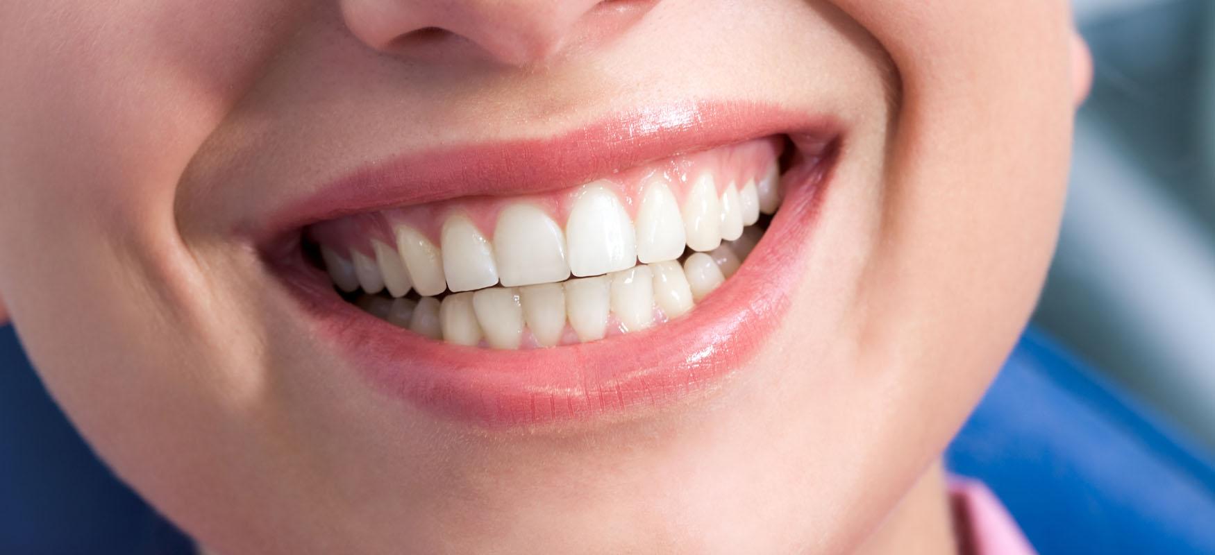 Gummy smile – jak leczyć uśmiech dziąsłowy?