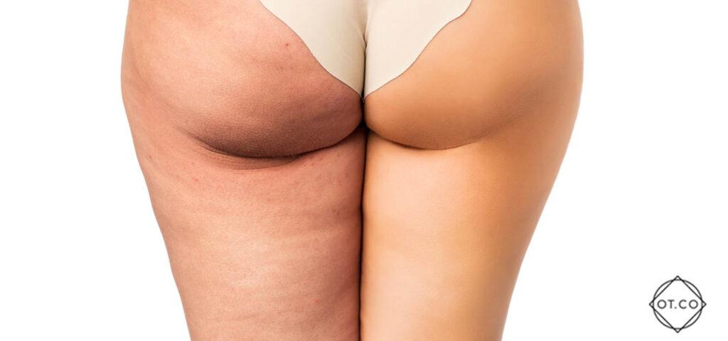 karboksyterapia efekty sa imponujace