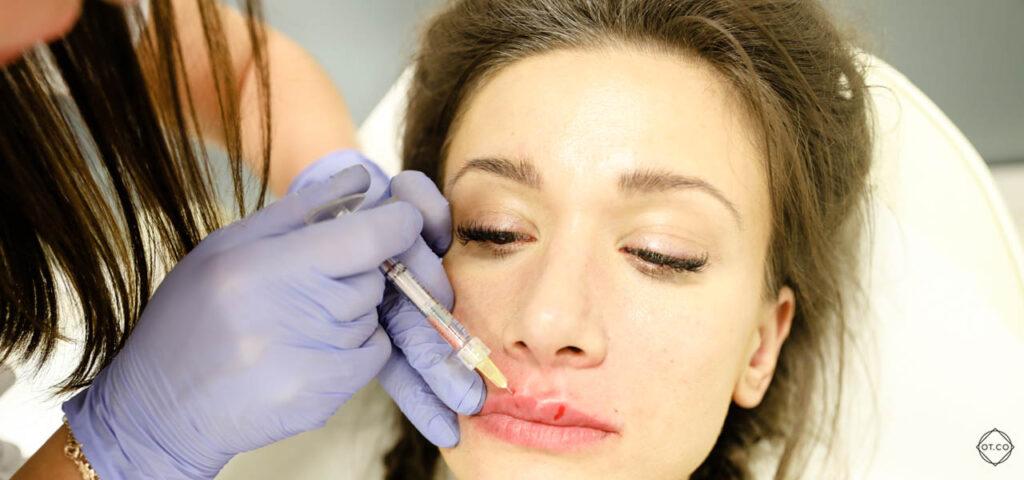 lip flip powiekszanie ust botoksem