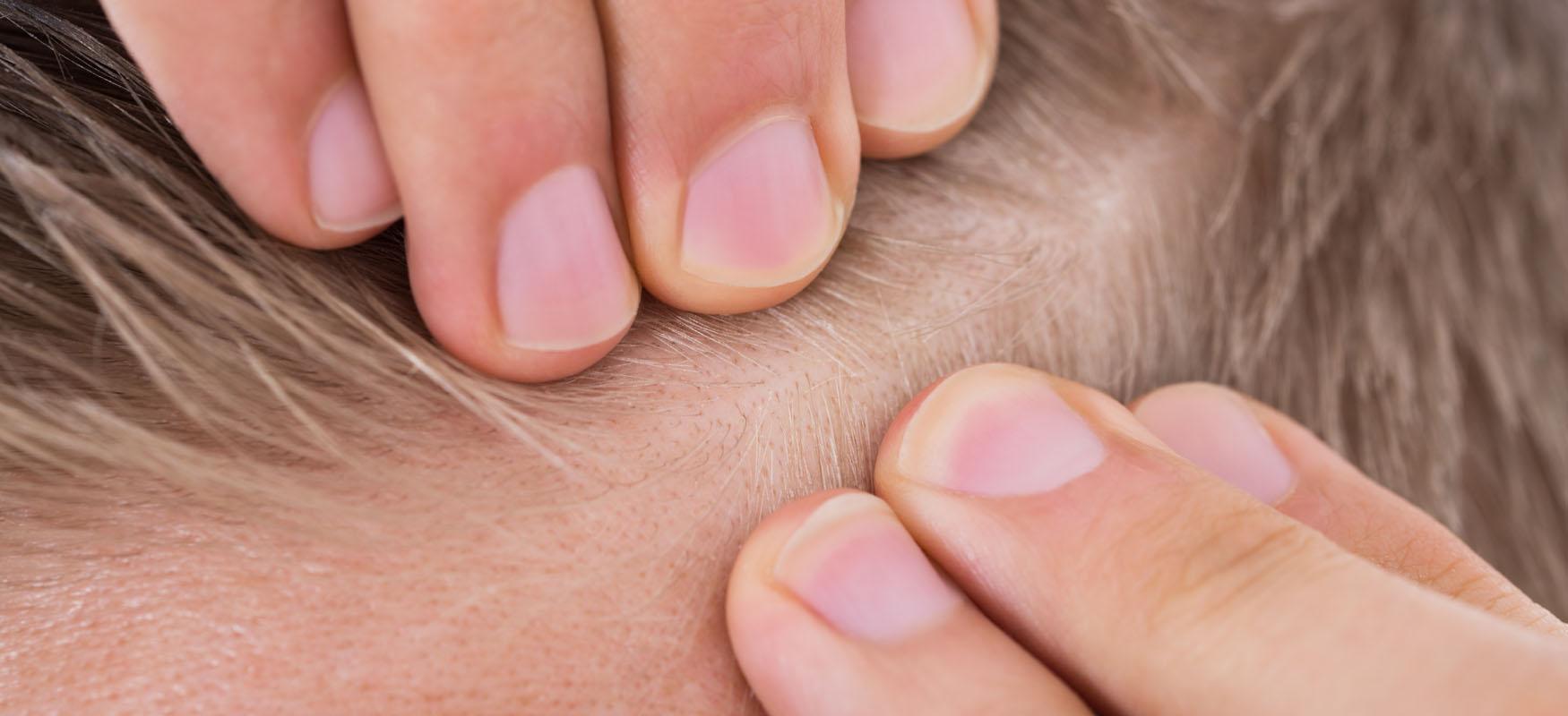 Łysienie androgenowe – przyczyny, jak leczyć?