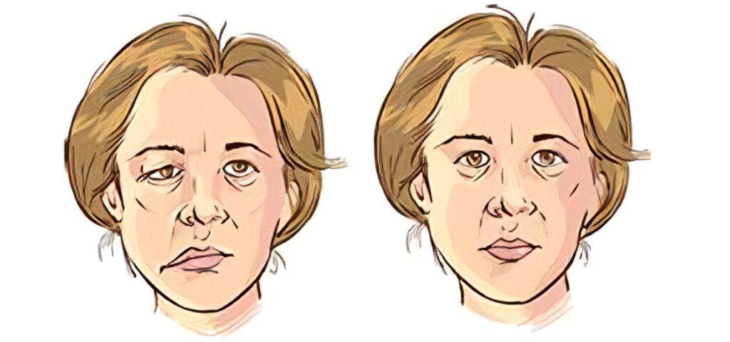 Objawy porażenia nerwu twarzowego