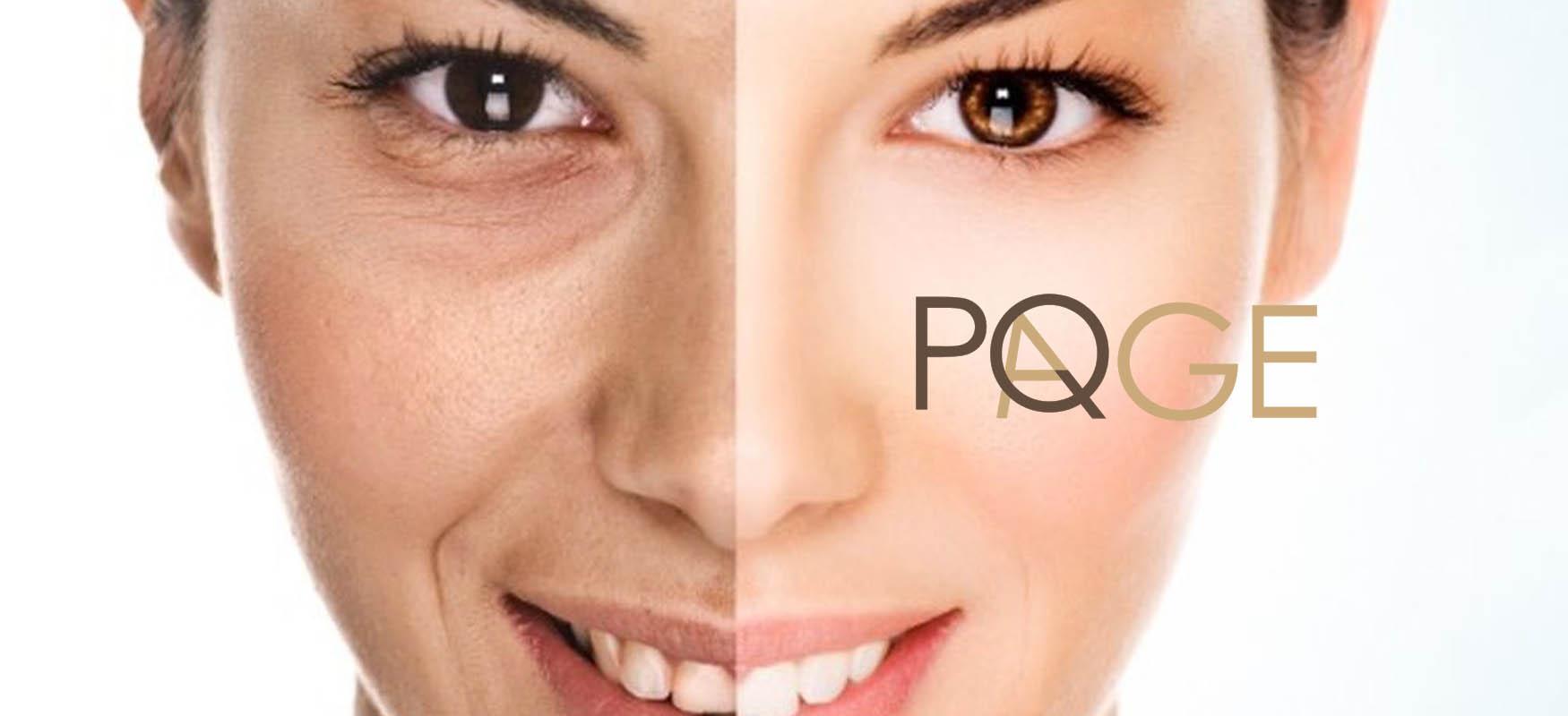 Peeling PQ Age: natychmiastowy efekt liftingu