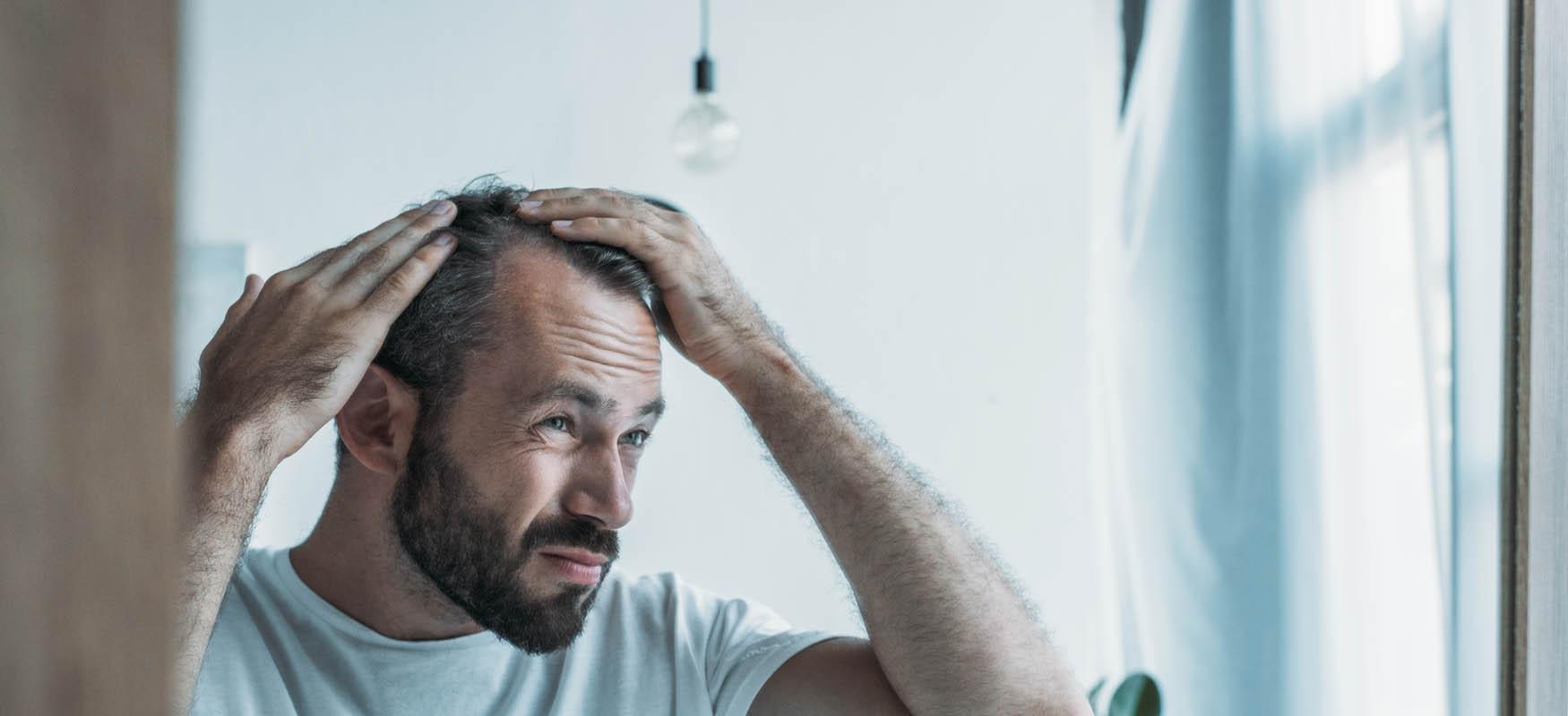 Wypadanie włosów – przyczyny ileczenie