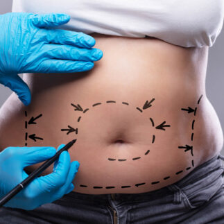 plastyka brzucha operacja plastyczna brzucha