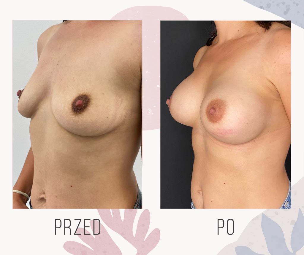 podniesienie powiekszenie piersi implantami