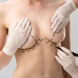 Powiększanie biustu implantami