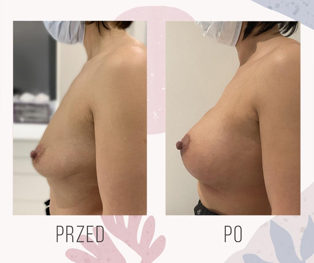powiekszanie piersi implantami warszawa