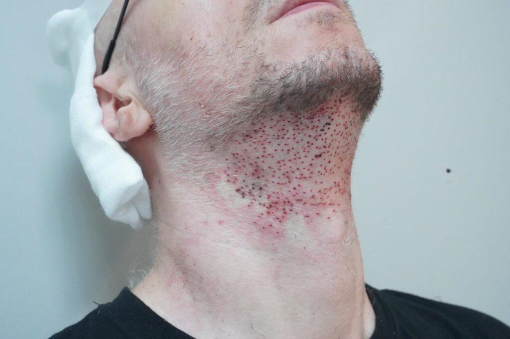 Stan skóry brody zaraz po przeszczepie zarostu