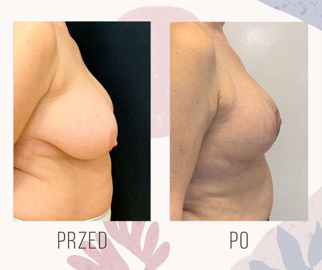 redukcja piersi 1