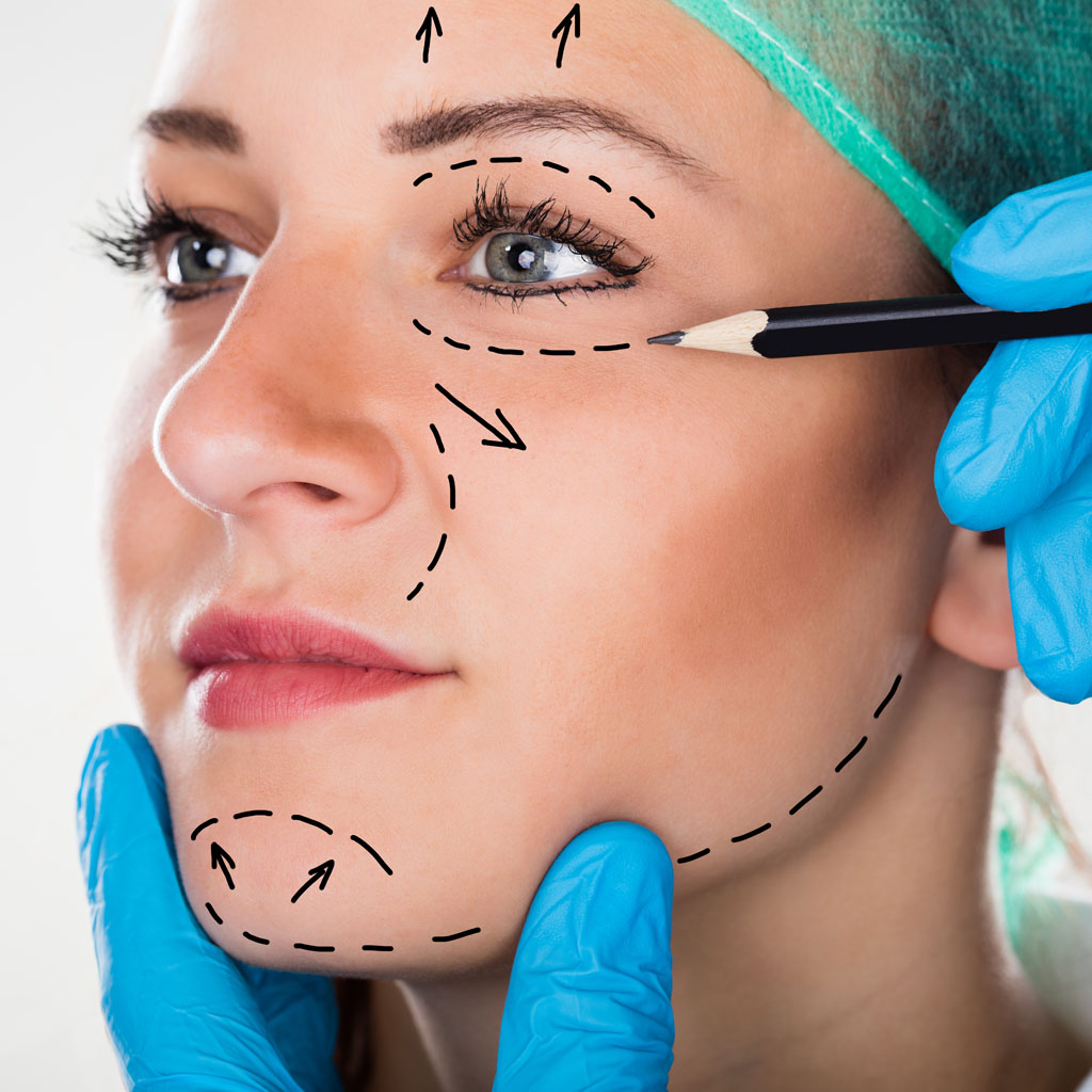 chirurgiczny lifting twarzy