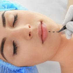 operacja plastyczna brody i żuchwy