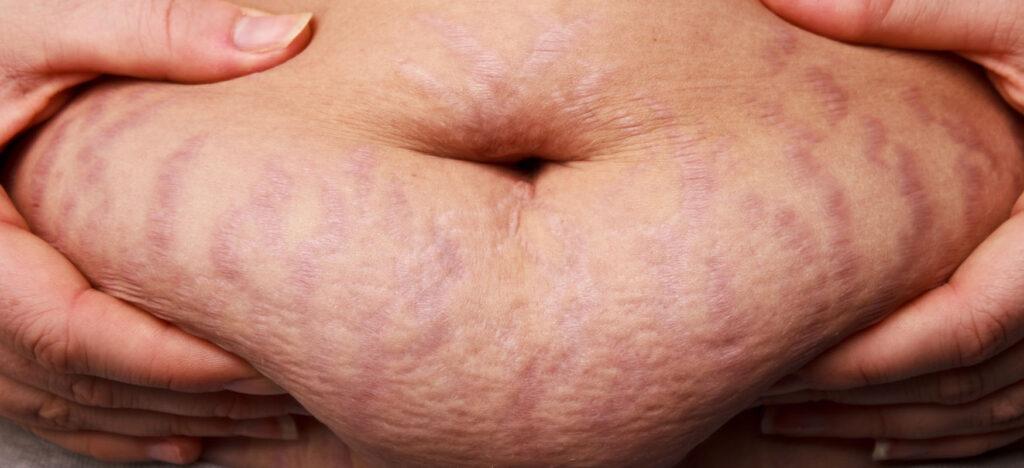rozstępy na brzuchu po ciąży