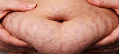 Brzuch po ciąży - pakiet zabiegów