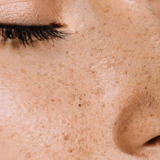 Przebarwienia na twarzy - pakiet zabiegów