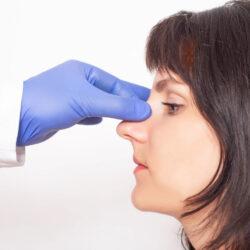 korekta przegrody nosa