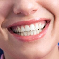 Leczenie uśmiechu dziąsłowego botoksem