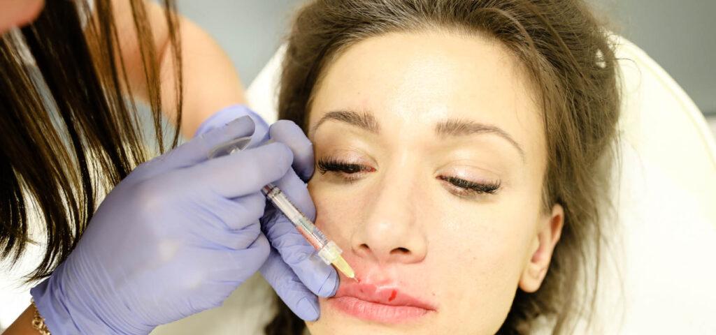modelowanie ust kwasem hialuronowym