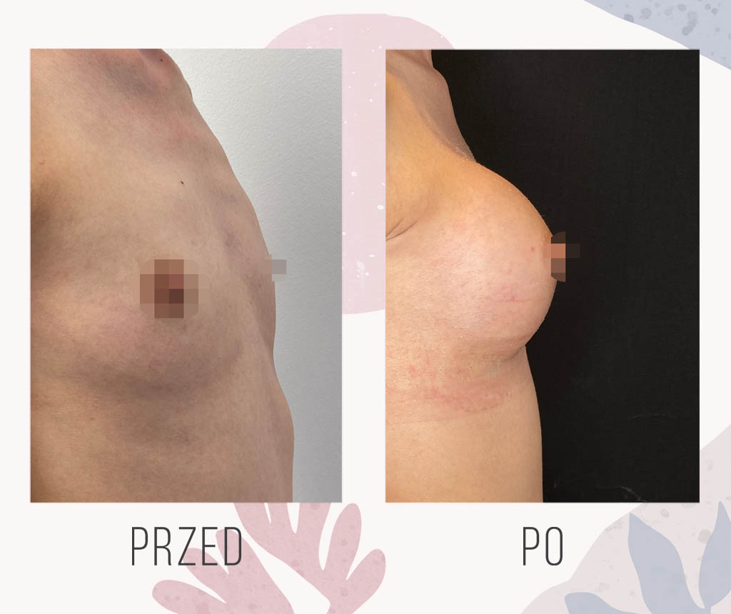 powiekszone piersi implantami